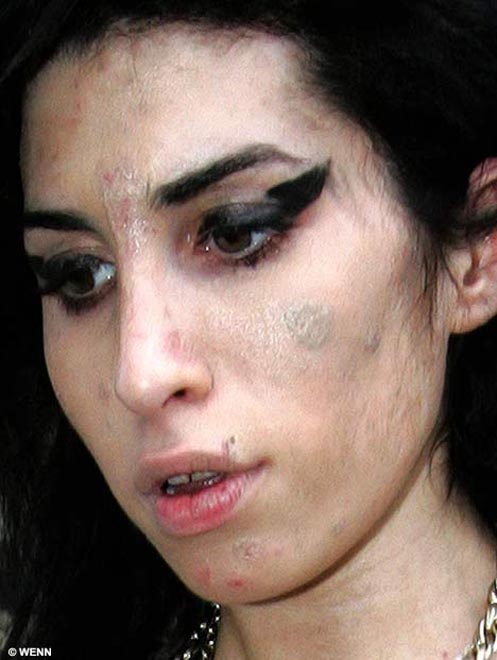 Amy Winehouse buys a sunbed - but will it be enough to cure her scabby face?