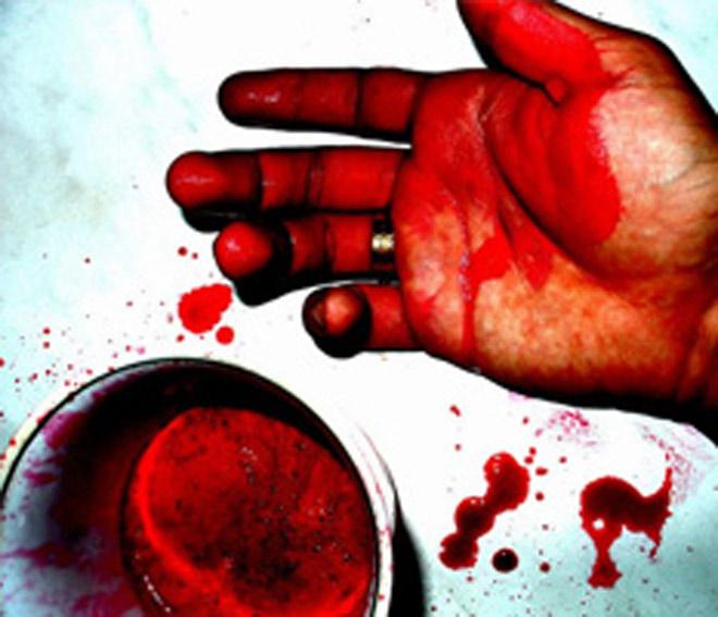 Тела убитых людей, кровь, жестокость и насилие...- совет азербайджанским телеканалам