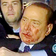 Injured Berlusconi to stay in hospital until Wednesday