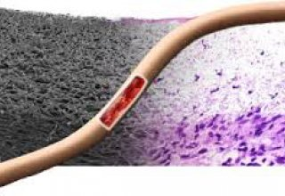 Iranian researchers produce artificial blood vessel