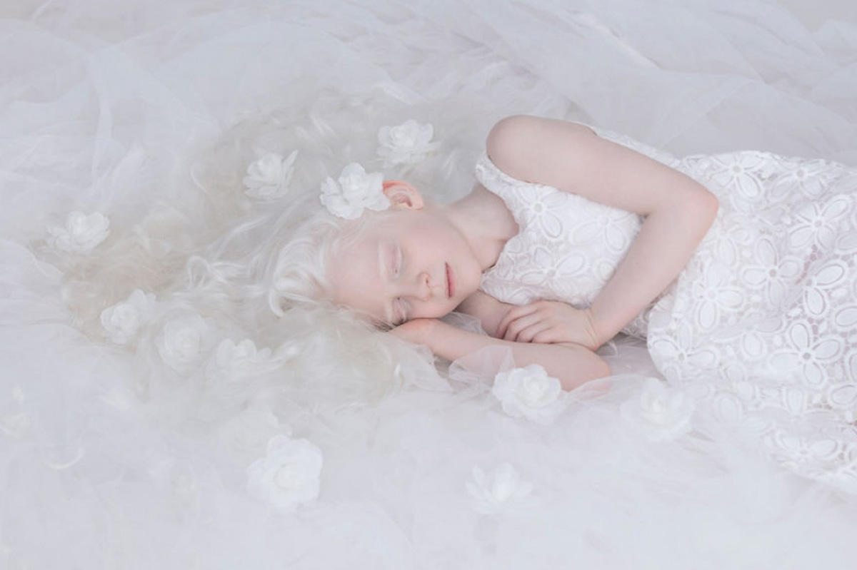 Albinoslara fərqli rakursdan baxış (FOTO) - Gallery Image