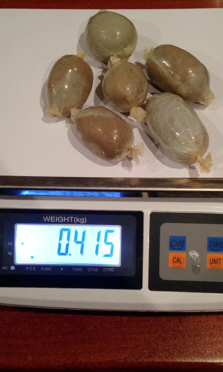 Iran's citizen hides drugs in rectum, tries to smuggle them to Azerbaijan (PHOTO) - Gallery Image