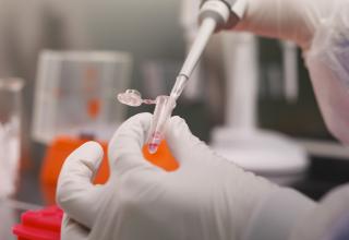 Hazırlanmaqda olan koronavirus vaksininin əsas üstünlüyü açıqlanıb